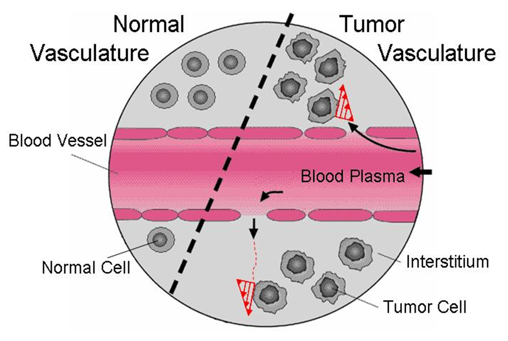 Cancer cells my cms schematic diagram showing interstitial flow across a tumor microvessel exposing tumor cells to ccuart Images