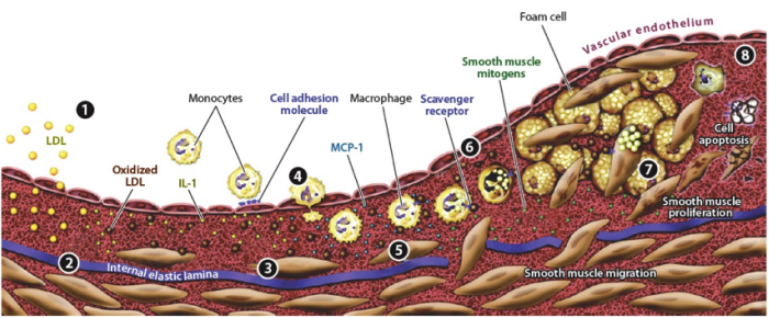 """Figure 2. The 8 stages of development of an atherosclerotic plaque. First LDL moves into the subendothelium and is oxidized by macrophages and SMCs (1 and 2). Release of growth factors and cytokines attracts additional monocytes (3 and 4). Foam cell accumulation and SMC proliferation result in growth of the plaque (6, 7, and 8). (from Faxon et al., 2004)"""" width=""""650"""" height=""""269"""" /> Figure 2. The 8 stages of development of an atherosclerotic plaque. First LDL moves into the subendothelium and is oxidized by macrophages and SMCs (1 and 2). Release of growth factors and cytokines attracts additional monocytes (3 and 4). Foam cell accumulation and SMC proliferation result in growth of the plaque (6, 7, and 8). (from Faxon et al., 2004)"""